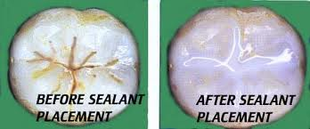 Before and after sealant application